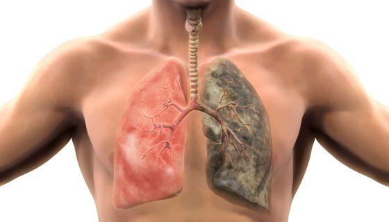 Как очистить легкие от никотина