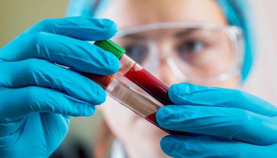 Анализ крови на никотин
